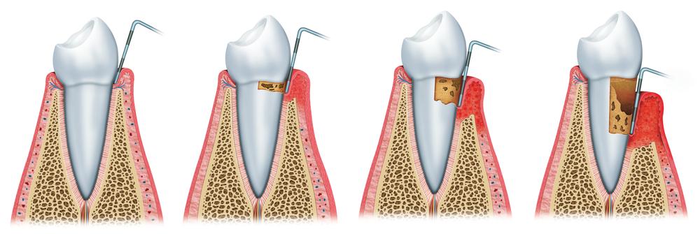 parodontit1
