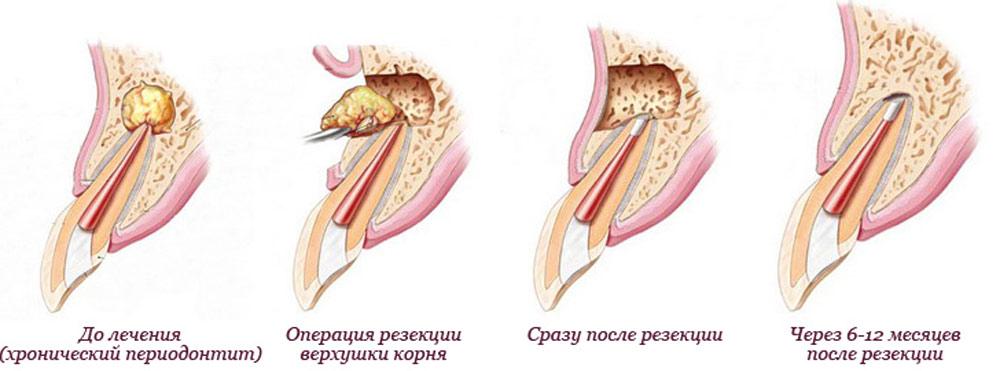 granulema-zuba-13