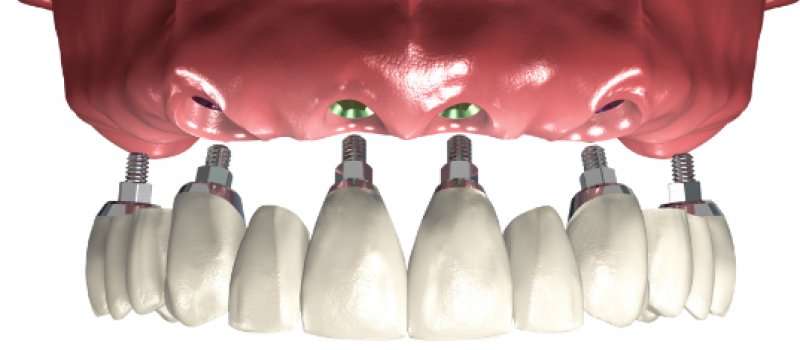 implant-retained-options_04_fulldenture-1
